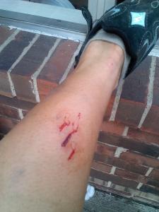 bike bite